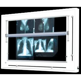 Négatoscope format spécial mammographies à volets (12 clichés de 18x24 ou 8 clichés de 24x30)